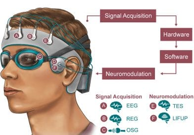 Kappe zur Schlafoptimierung durch Neuromodulation
